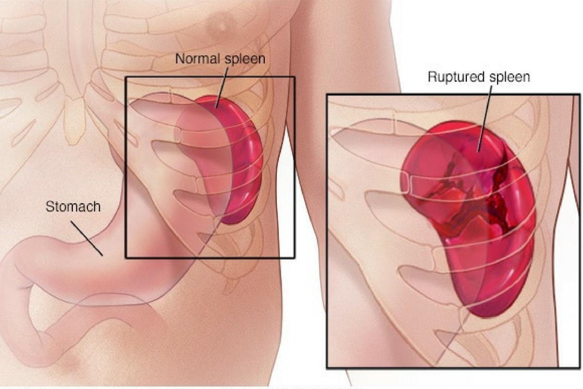 Spleen Surgery Kenya Laparoscopic Surgery Services General Surgery